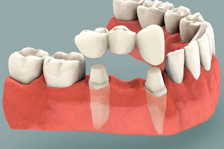 Serv-Dental-Crowns-and-Bridges