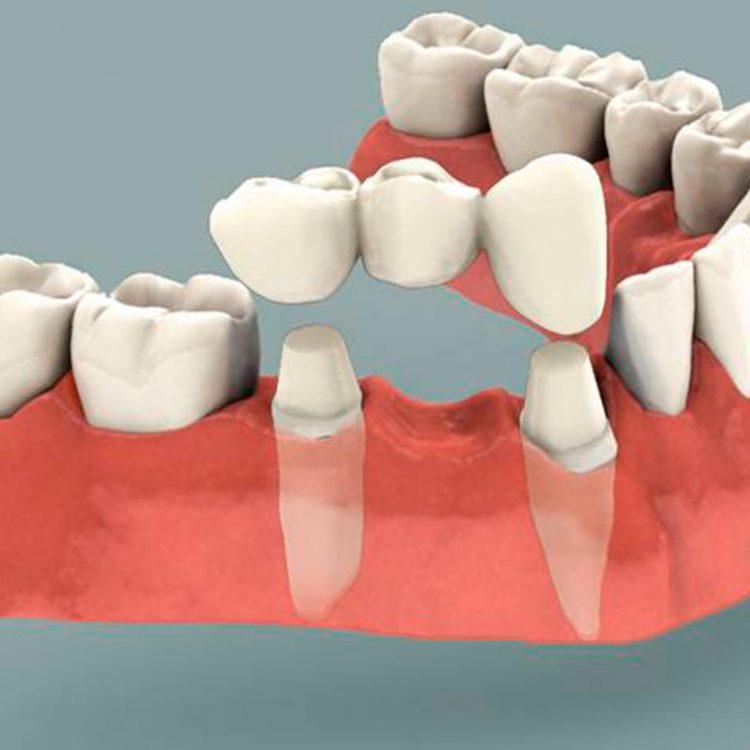Serv-Dental-Crowns-and-Bridges