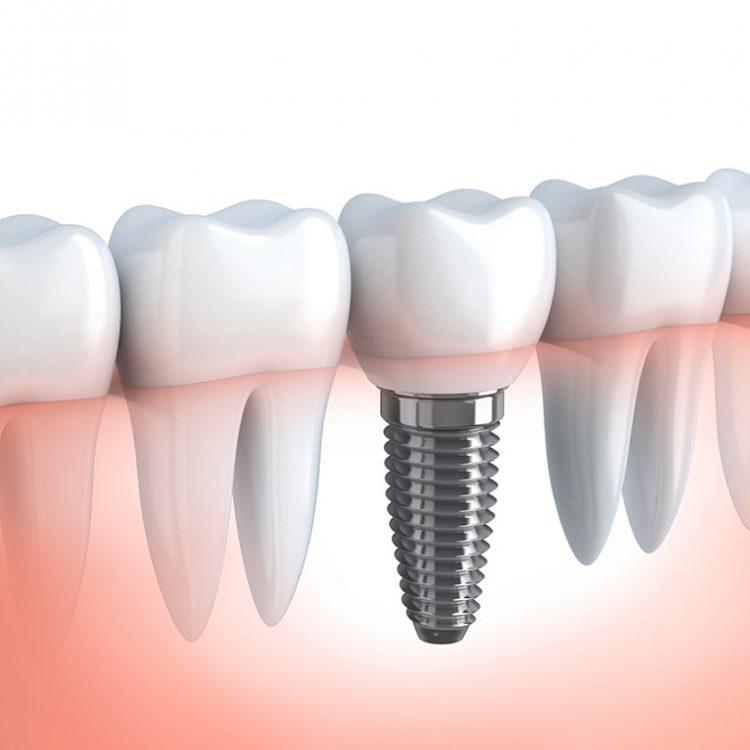 Serv-Dental-Implants