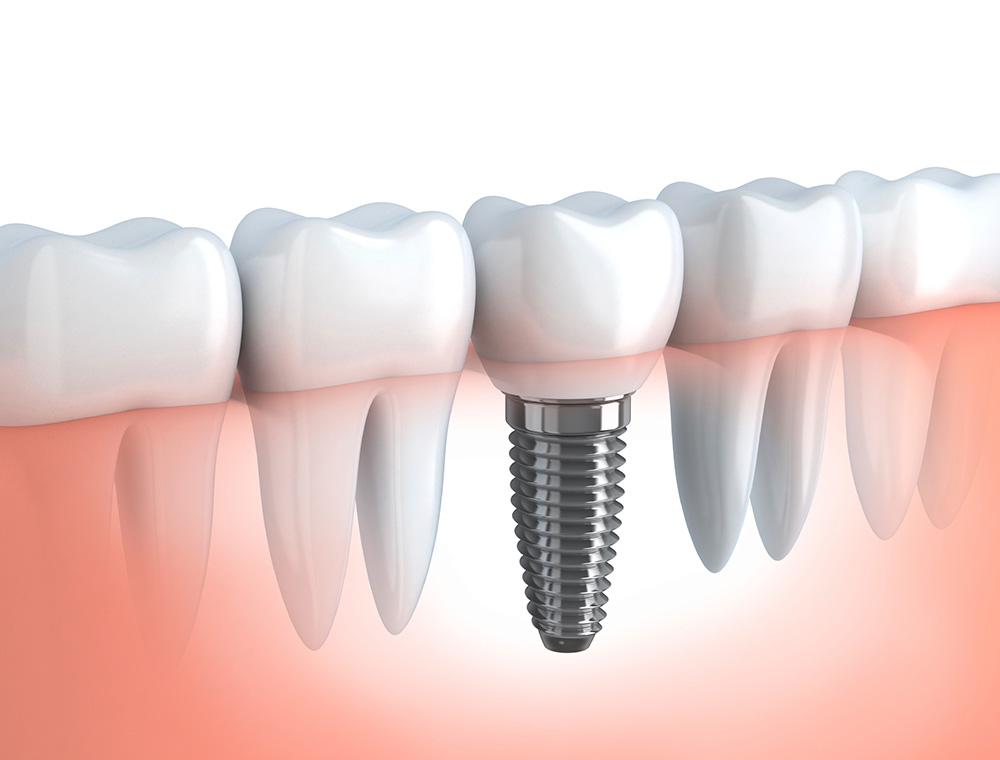 Serv-Dental-Implants
